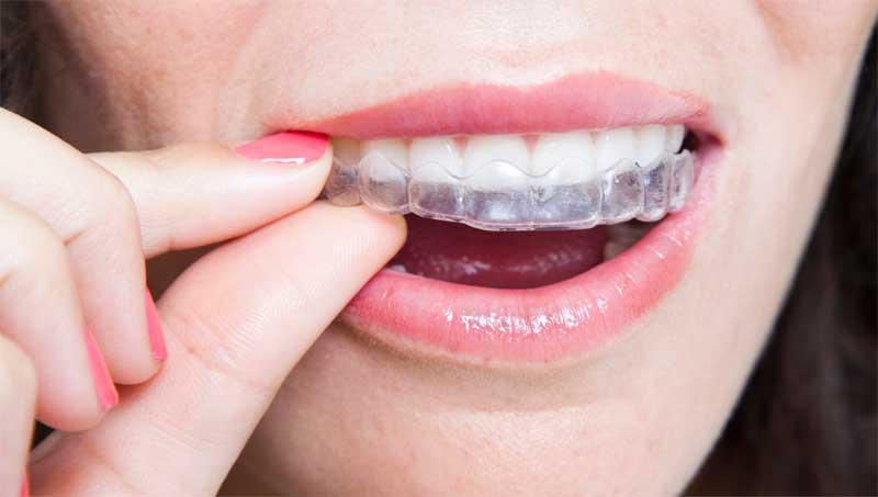 dudas acerca del tratamiento de ortodoncia invisible Invisalign