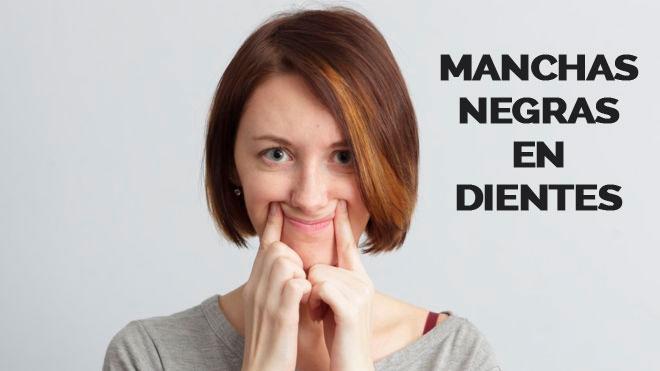 que son las manchas negras en los dientes y cual es su tratamiento
