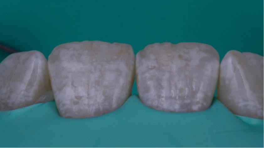 imagen de antes de microabrasión del esmalte, dientes manchados