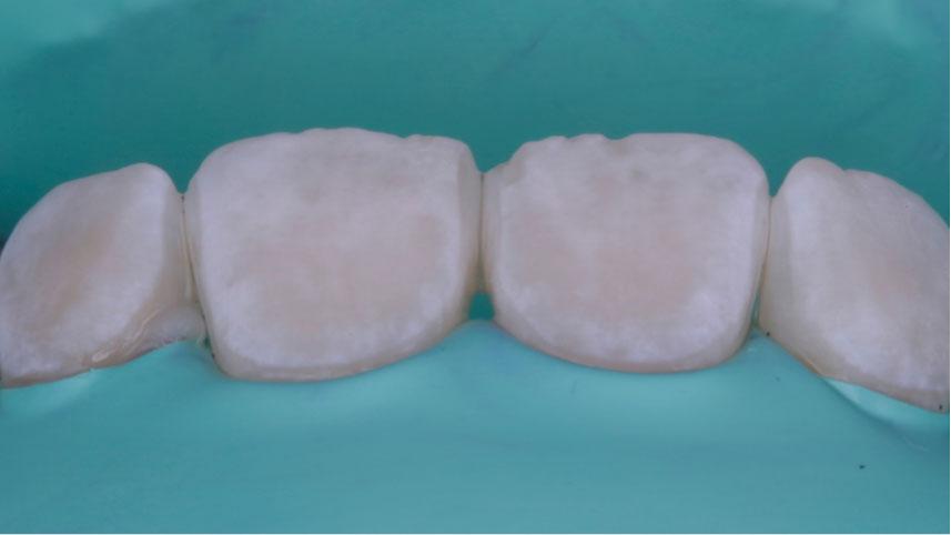 resultados de microabrasión del esmalte dental