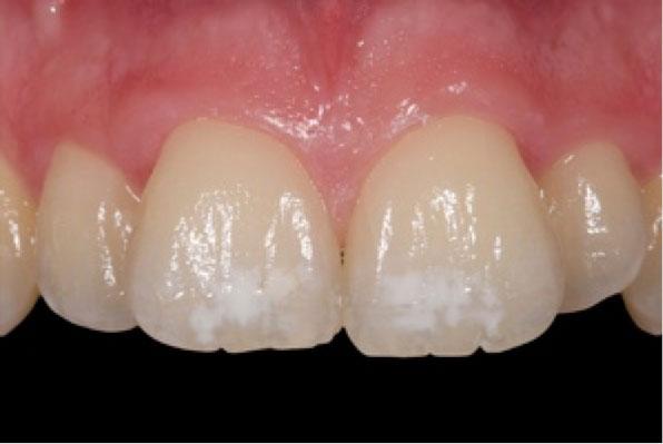 microabrasión del esmalte para eliminar las manchas de los dientes