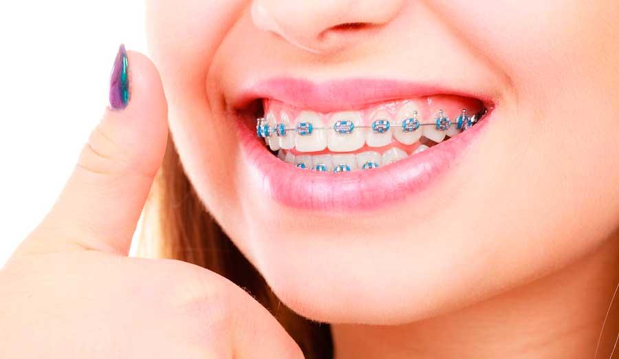 solución a pequeños problemas de ortodoncia para solucionar desde casa
