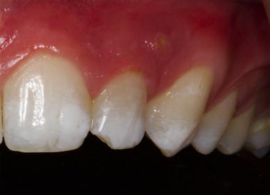Foto de absceso dental localizado