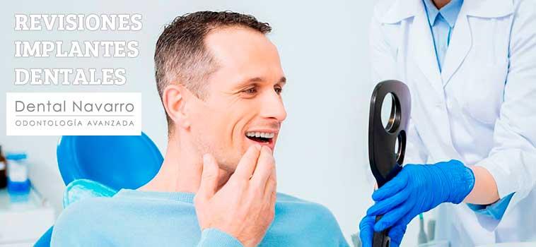 revisiones periódicas implantes dentales