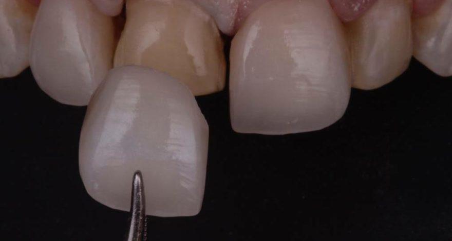 tipos de carillas dentales, usos, ventajas y mantenimiento