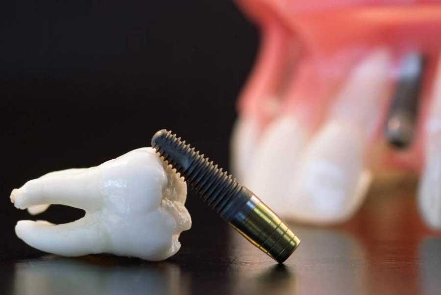 motivos y casos donde un implante dental puede fracasar o ser rechazado