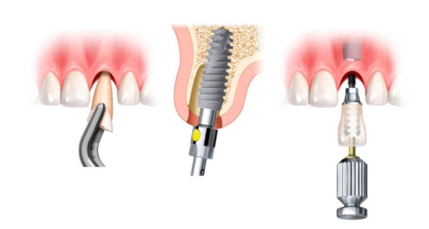 implantes dentales en un día es posible hacerlo