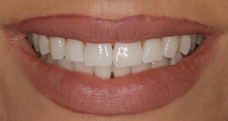 consejos y recomendaciones después de cirugía oral o dental