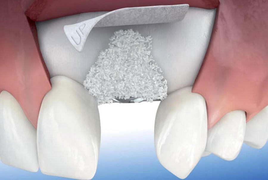 todo sobre regeneración ósea guiada dental