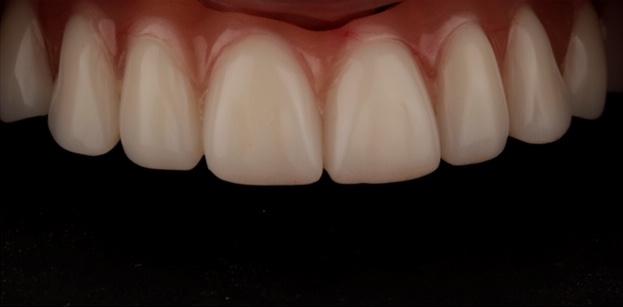 tipos de prótesis colocadas sobre implantes dentales