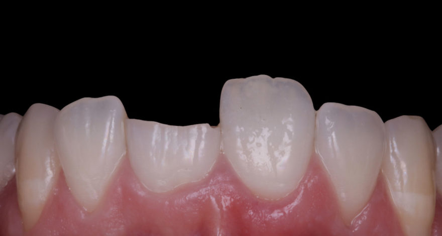 fractura dental bruxismo