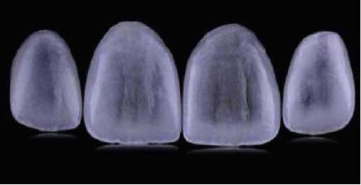 carillas dentales que no necesitan tallado