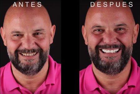 antes y despues tras DSD en clínica dental navarro Madrid