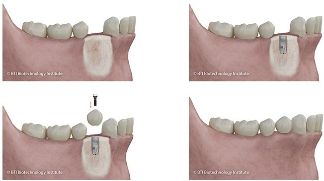 implantes dentales proceso empleado en clínica dental de Madrid