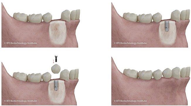 implantes dentales proceso empleado en clínica dental de Madrid