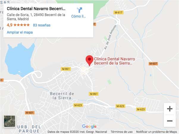 mapa de localización de la clínica dental Navarro de Becerril