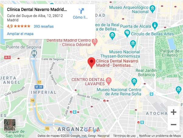 mapa de localización de la clínica dental Navarro en Madrid