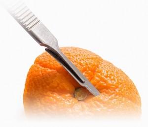 tratamiento de periodoncia en madrid capital
