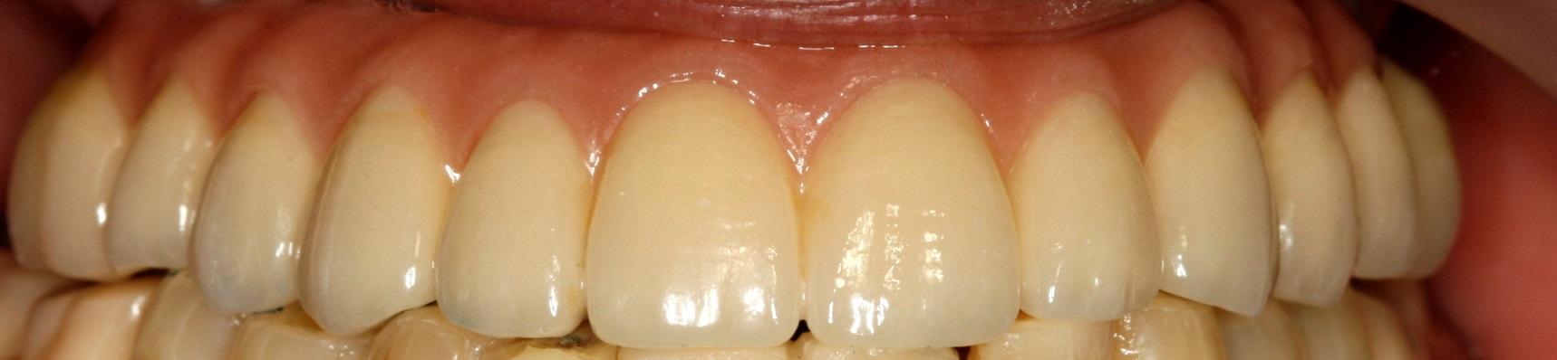 Rehabilitación 8 implantes1