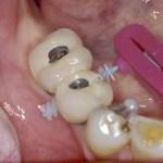 mantenimiento implantes