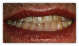 aspecto de la sonrisa antes del tratamiento