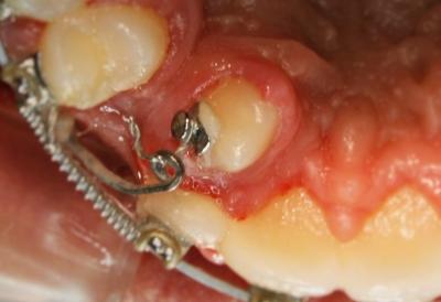 extracción de dientes caninos-10