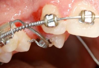 extracción de dientes caninos-3
