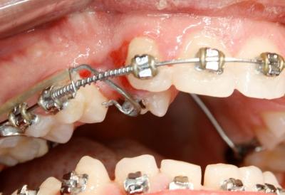 extracción de dientes caninos-4