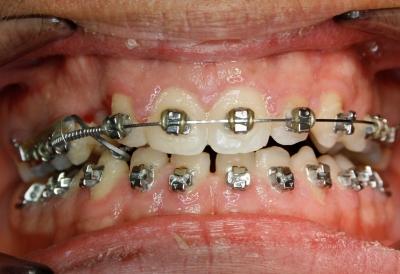 extracción de dientes caninos-5