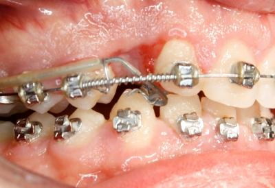 extracción de dientes caninos-6
