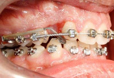 extracción de dientes caninos-7
