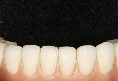 tapones de cicatrización de los implantes