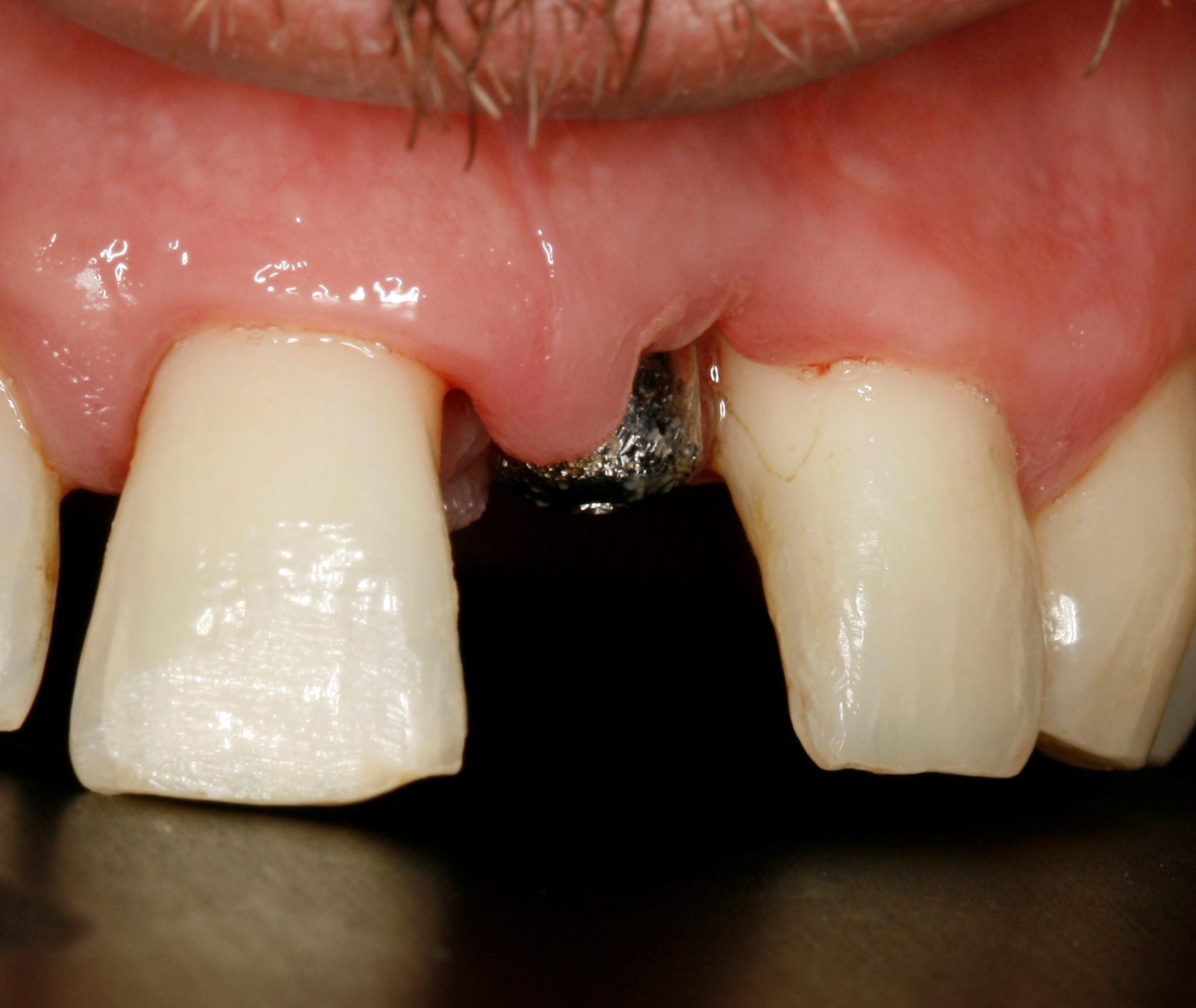 2 meses con el implante colocado