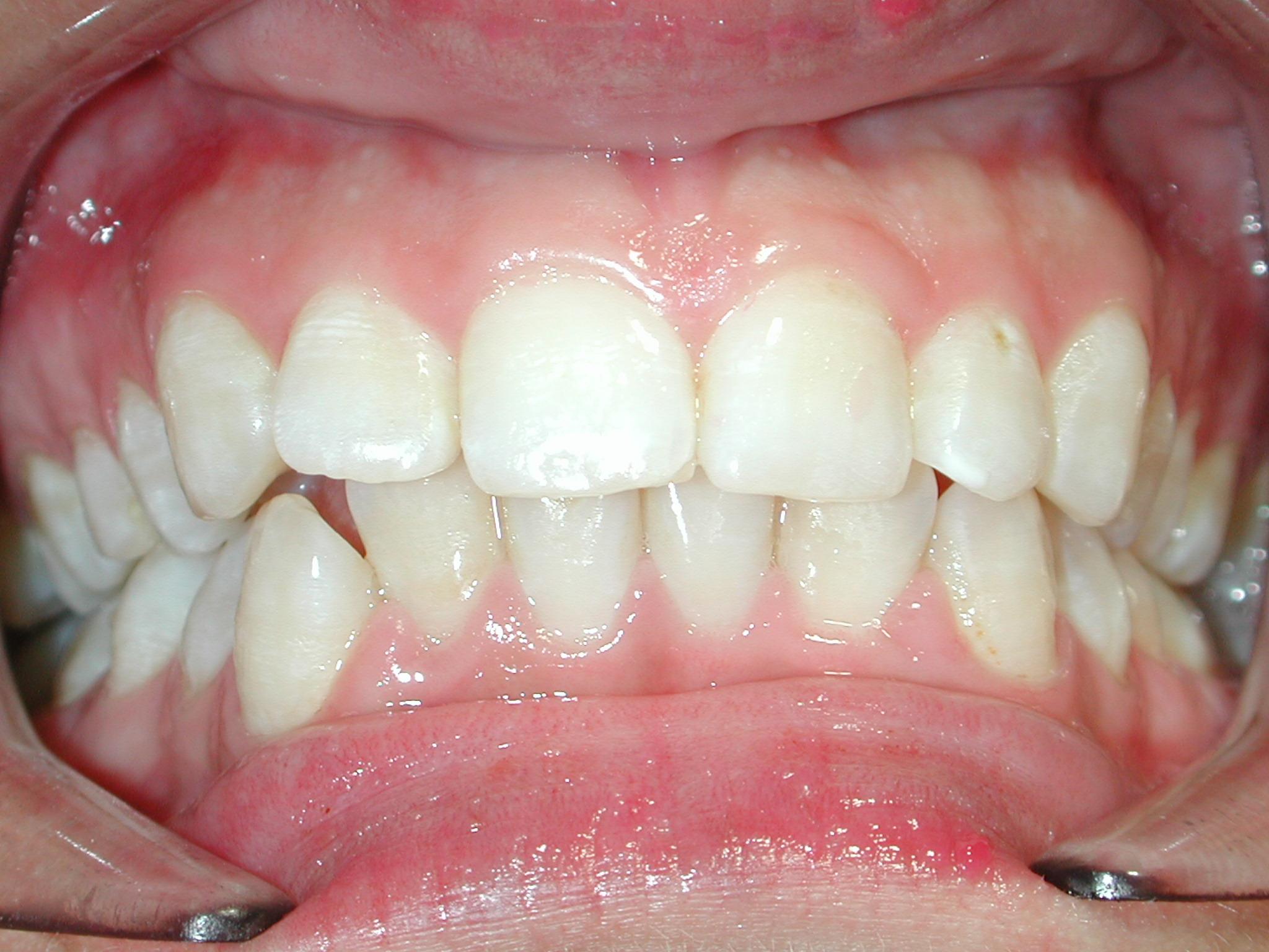 ortodoncia-antes-4