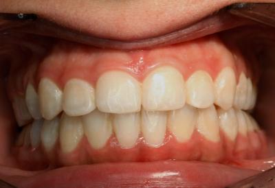 ortodoncia-después-4
