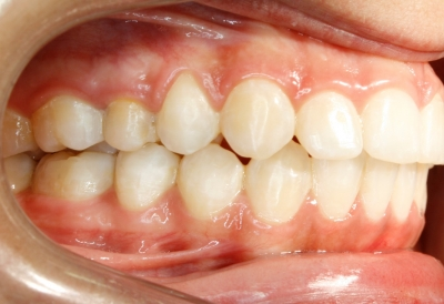 ortodoncia-después-5