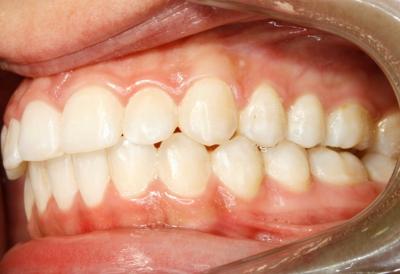 ortodoncia-después-6