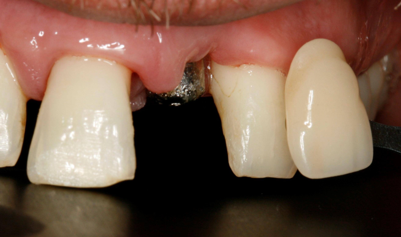 toma de color para realizar la corona sobre implante