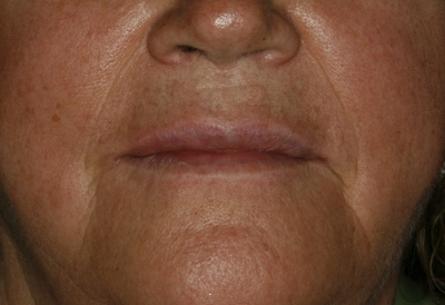 estética-facial-hialurónico-1