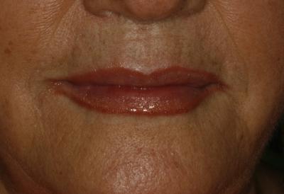 estética-facial-hialurónico-4