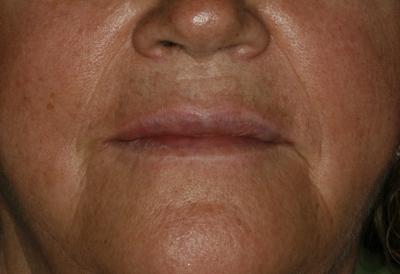estética-facial-hialurónico-5