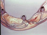 implantes subperiósticos