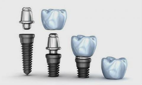 que tipos de implantes hay actualmente