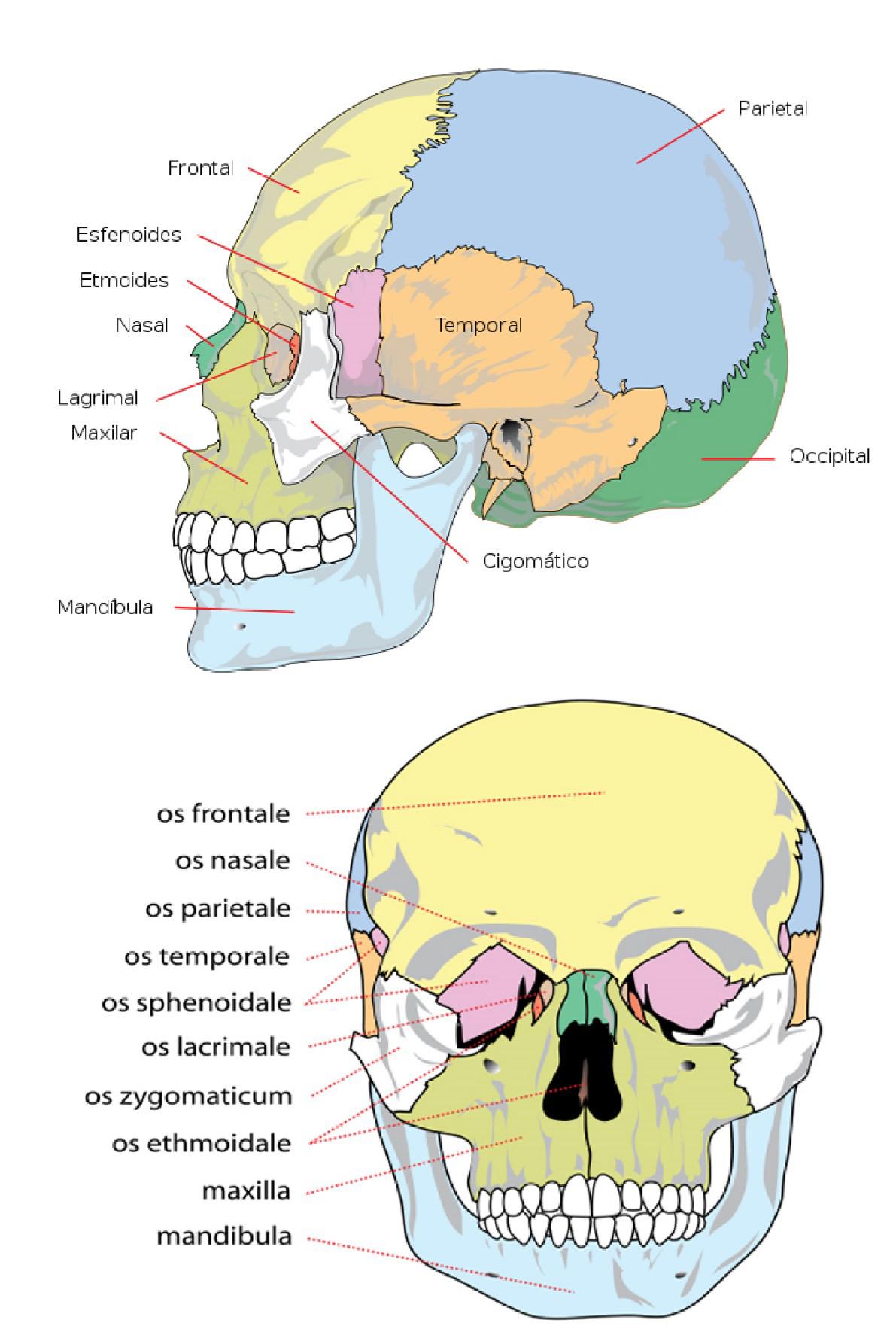 Implantes Transcigomaticos