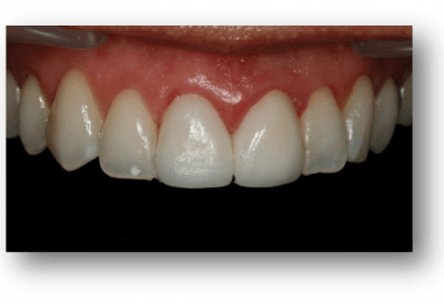Clínica Dental Navarro Implantes Dentales Madrid