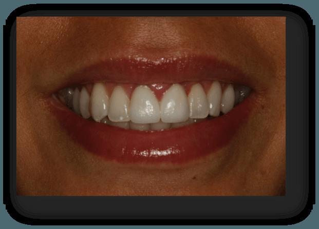 clinica dental navarro implantes madrid