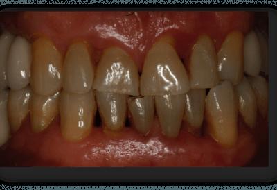 caso implantes dentales jose