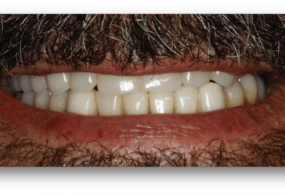 caso jose implantes dentales despues