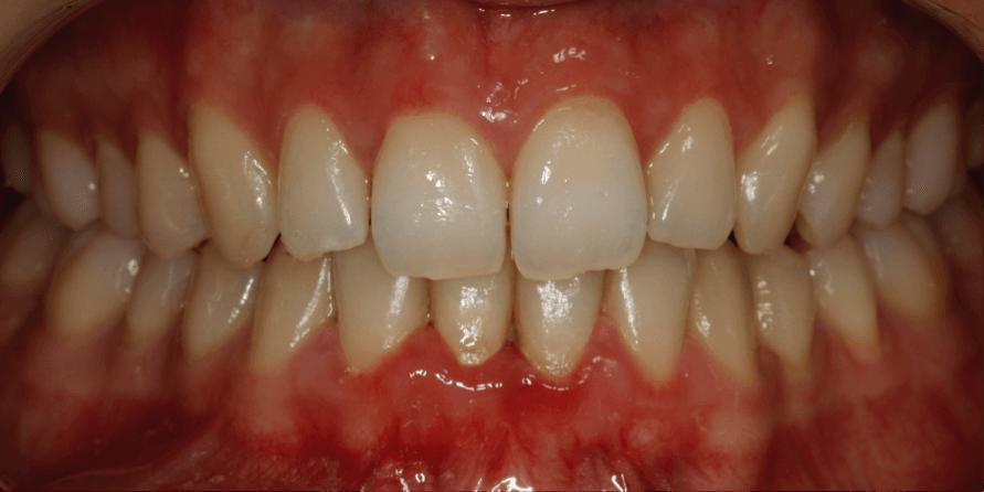 ortodoncia-alineadent-madrid-antes3