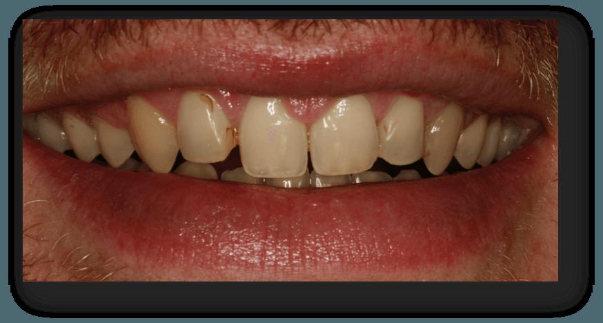 caso carillas dentales madrid1
